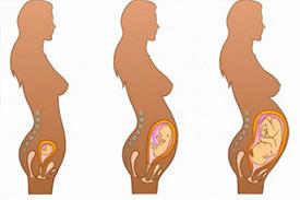 妊娠中 体型